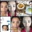 Pitchy Beauty Up Gold Celotra Queen Mask. มาร์คหน้าทองคำ thumbnail 13