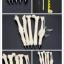 ชุดปากกากระดูก thumbnail 6