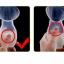 ขวดปั๊มนมซิลิโคนสูญญากาศ NanaBaby Silicone Breast Pump thumbnail 7