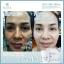 MANA Skincare Nature White Booster Mask 🌾 มาส์กข้าวสาเกญี่ปุ่นและน้ำแร่ ผลิตภัณฑ์จากธรรมชาติ 100%🌾 ขนาด 30 ml thumbnail 46